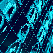 Radiology imaging in healthcare